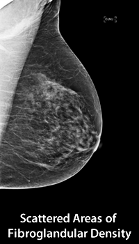 Scattered Areas of Fibroglandular Density